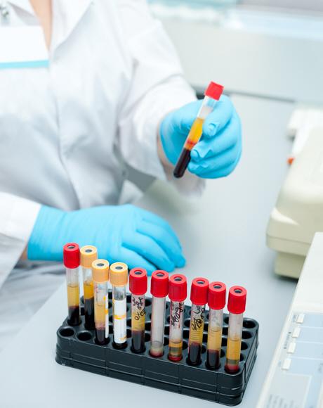 doctor in white coat holds blood sample