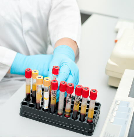 doctor in white lab coat with rack of blood samples