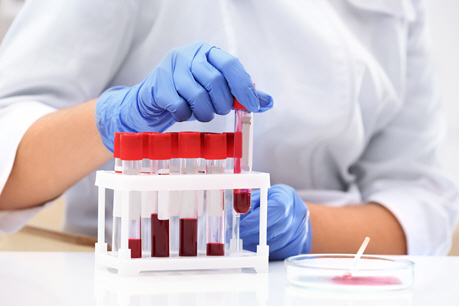 doctor pulls blood sample from rack
