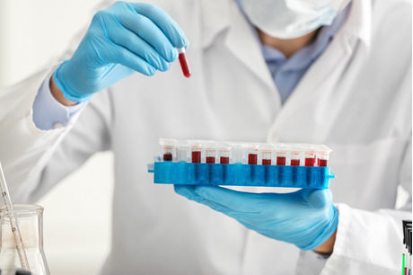doctor pulls small blood sample from rack