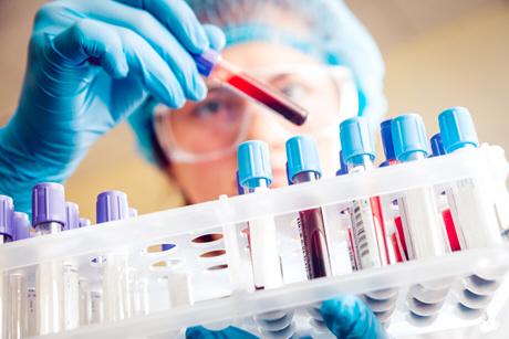 female doctor pulls test tube from rack