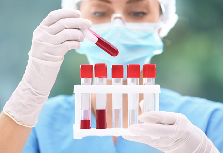 female doctor takes a look at blood sample