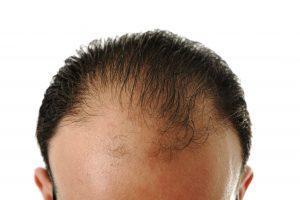 man loosing hair baldness_HFJ zNSarj 300x200
