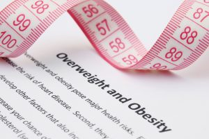 overweight and obesity_zkY63LPO 300x200